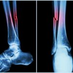 Myth – A fracture is a milder form of bone injury than a broken bone.